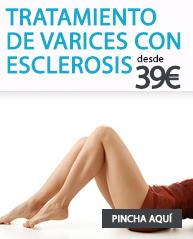 tratamiento de varices con esclerosis